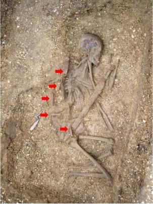 pocklington-burial